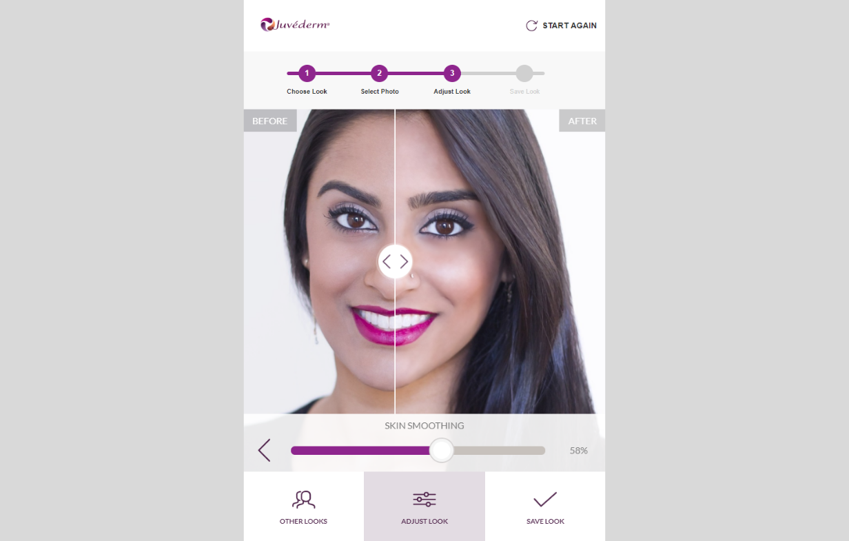 Juvederm Visualiser